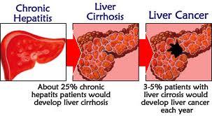 To Boomers And Gps Be Optimistic Hepatitis Hep C Is