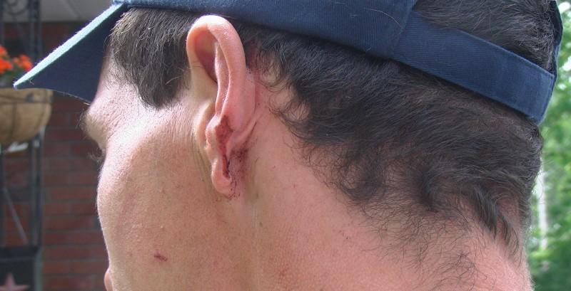 Kevin Langlois ear