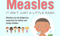 Epic Measles Outbreaks Signifies Importance of Vaccinations by Mary Anne Pankhurst 092118